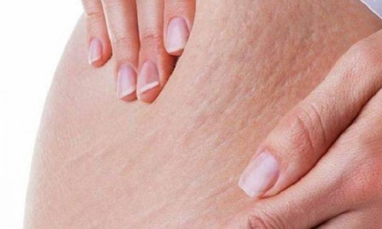 مفيش داعى لإحباط..3 وصفات سهلة لإزالة أثار الحمل من الجسم