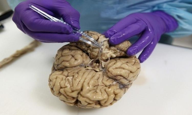 سبب عدم ارتفاع درجات حرارة المخ فى أثناء عمله