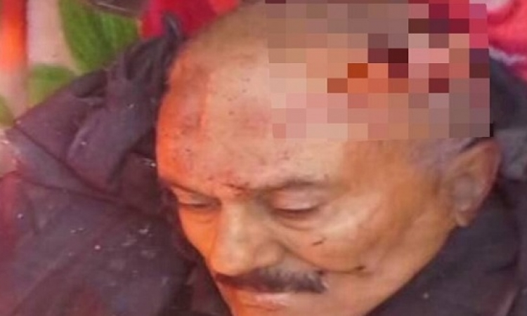 أسرار خطيرة يكشفها طبيب شرعى حول جثة على عبد الله صالح