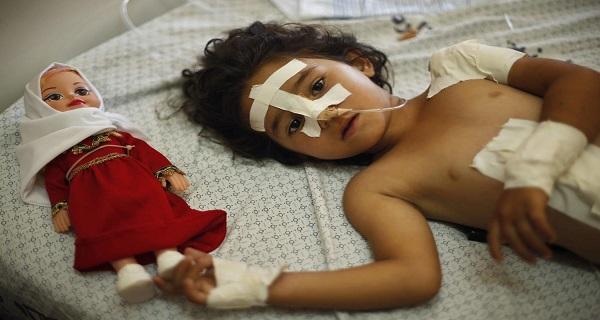 طفلة مصابة