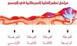 مراحل تطوير الخلية السرطانية