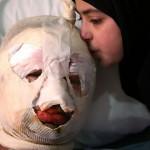 ابنه تقبل أباها المجروح فى انفجار محطة الغاز بلبنان