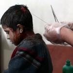 مصاب فى سوريا