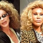 نجوم هوليوود قبل وبعد عمليات التجميل