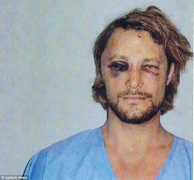 جابريل اوبرى بعد الاعتداء عليه
