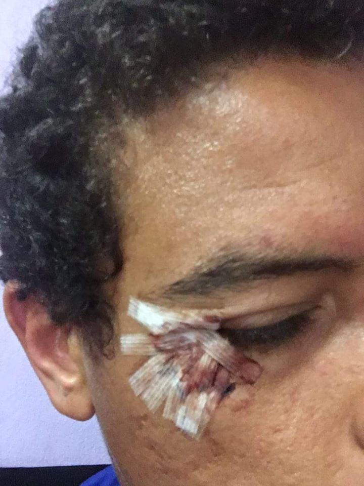 اصابة سعد سمير